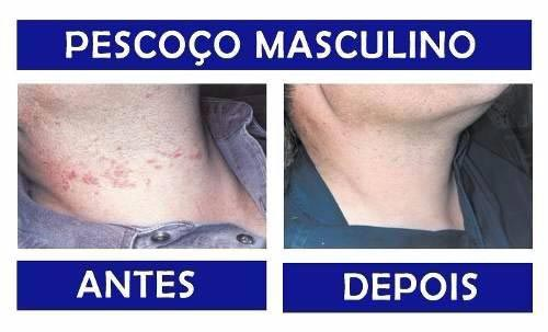 Antes e Depois Tend Skin 02