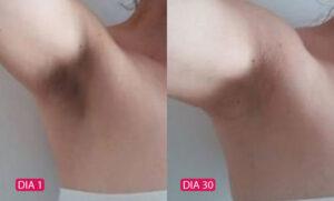Rosa Selvagem - Antes e Depois 02