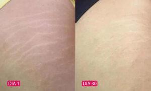 Rosa Selvagem - Antes e Depois 03